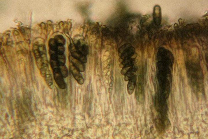Lichen asci